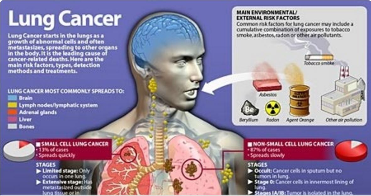 Lung cancer and heavy metal toxins - Brain disease , senior care , alzheimer